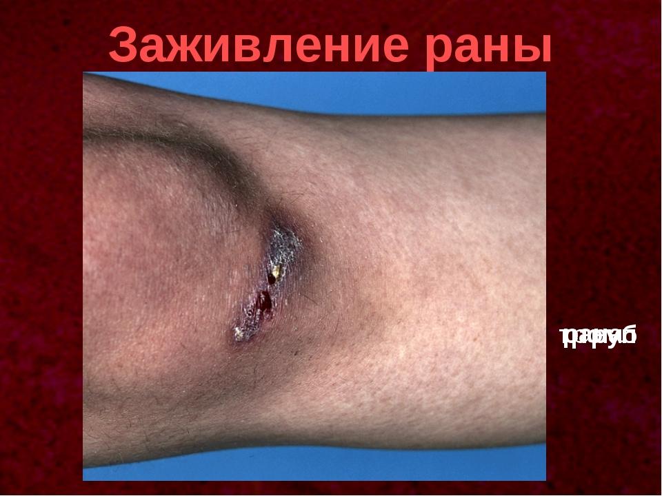 Заживление раны рана тромб струп