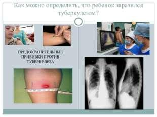 Как можно определить, что ребенок заразился туберкулезом? ПРЕДОХРАНИТЕЛЬНЫЕ П