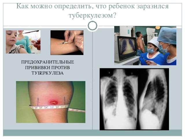 Как можно определить, что ребенок заразился туберкулезом? ПРЕДОХРАНИТЕЛЬНЫЕ П...