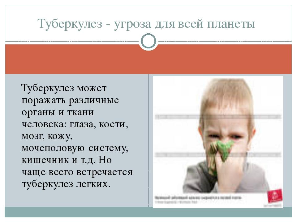 Туберкулез может поражать различные органы и ткани человека: глаза, кости, м...