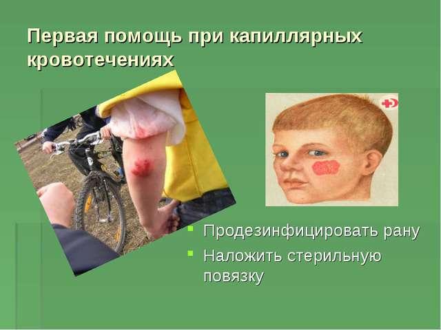 Первая помощь при капиллярных кровотечениях Продезинфицировать рану Наложить...