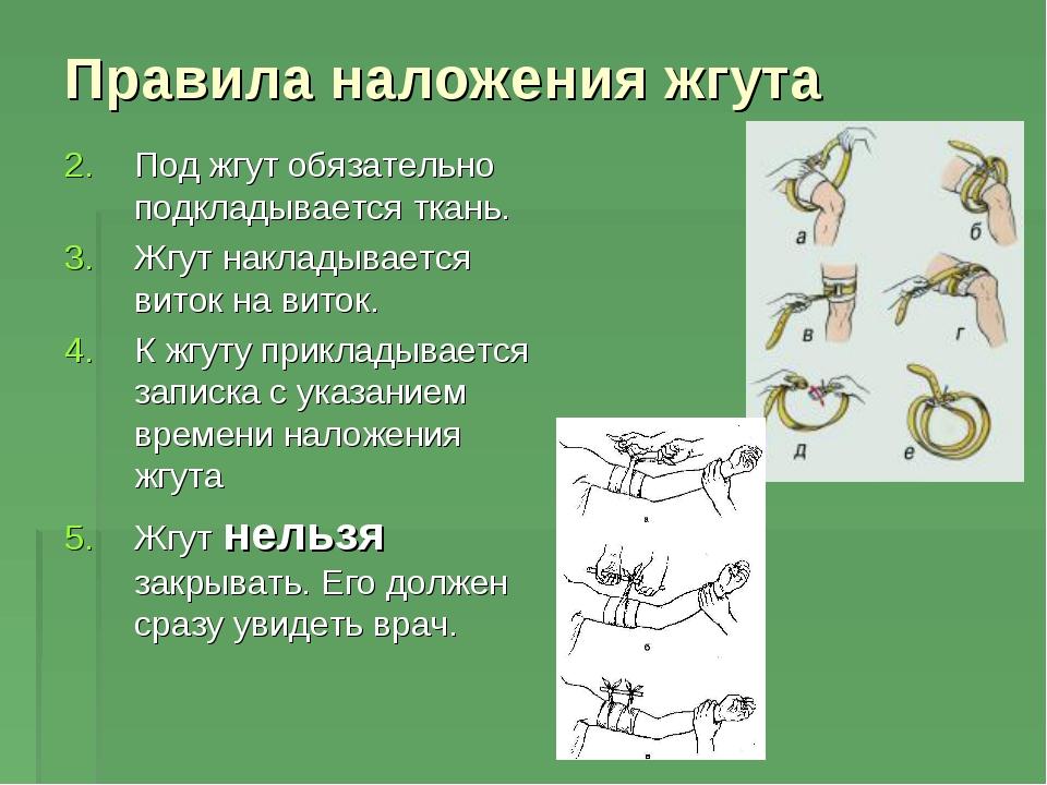 Правила наложения жгута Под жгут обязательно подкладывается ткань. Жгут накла...