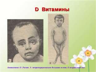 D Витамины Авитаминоз D .Рахит. А- непропорционально большая голова. Б-искрив