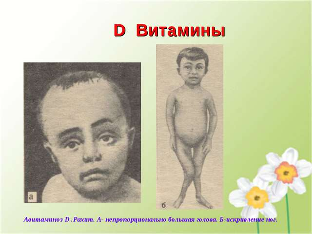 D Витамины Авитаминоз D .Рахит. А- непропорционально большая голова. Б-искрив...
