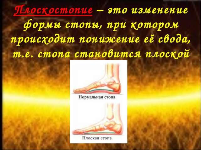 Плоскостопие – это изменение формы стопы, при котором происходит понижение её...