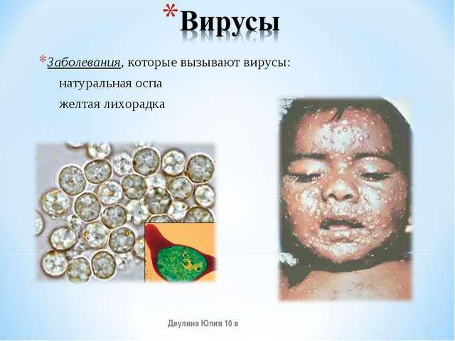 Заболевания, которые вызывают вирусы: натуральная оспа желтая лихорадка Деули...