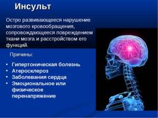 Инсульт Остро развивающееся нарушение мозгового кровообращения, сопровождающе