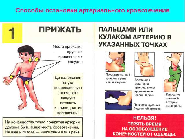 Способы остановки артериального кровотечения