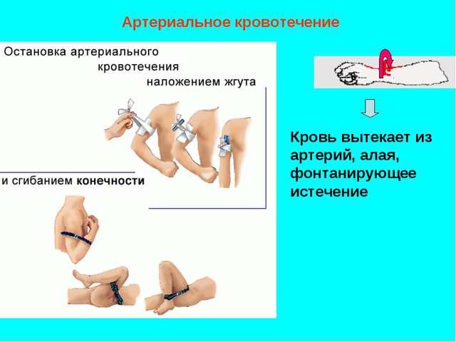 Артериальное кровотечение Кровь вытекает из артерий, алая, фонтанирующее исте...