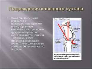 Самая тяжелая ситуация возникает при внутрисуставных переломах костей, образу