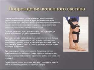 Повреждения коленного сустава возникают при ротационных движениях в коленном