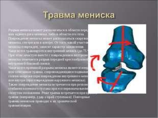 Разрыв мениска может располагаться в области переднего или заднего рога менис