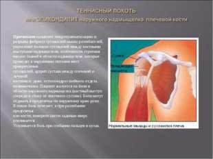Причинами называют микротравматизацию и разрывы фибрилл сухожилий мышц-разгиб