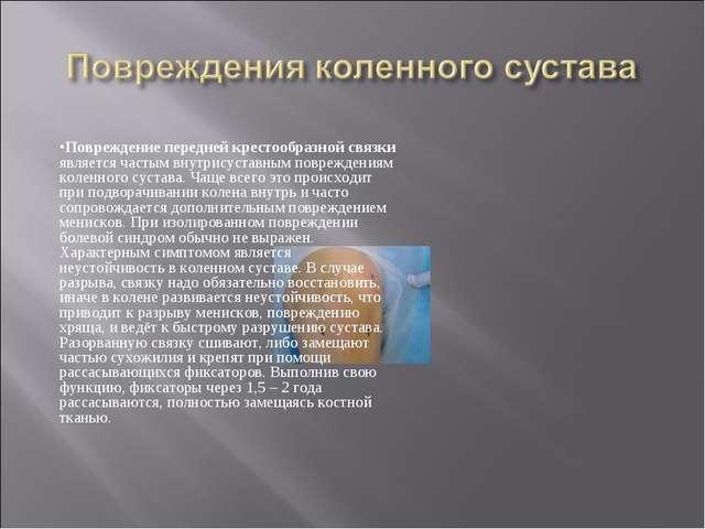 Повреждение передней крестообразной связки является частым внутрисуставным по...