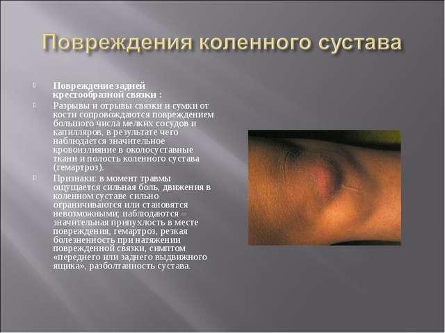 Повреждение задней крестообразной связки : Разрывы и отрывы связки и сумки от...