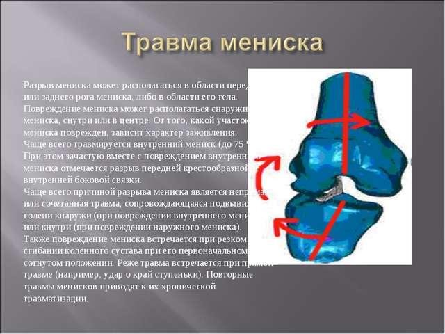 Разрыв мениска может располагаться в области переднего или заднего рога менис...