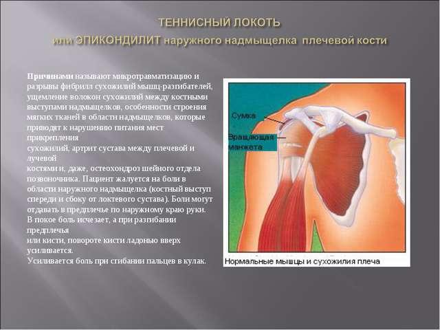 Причинами называют микротравматизацию и разрывы фибрилл сухожилий мышц-разгиб...