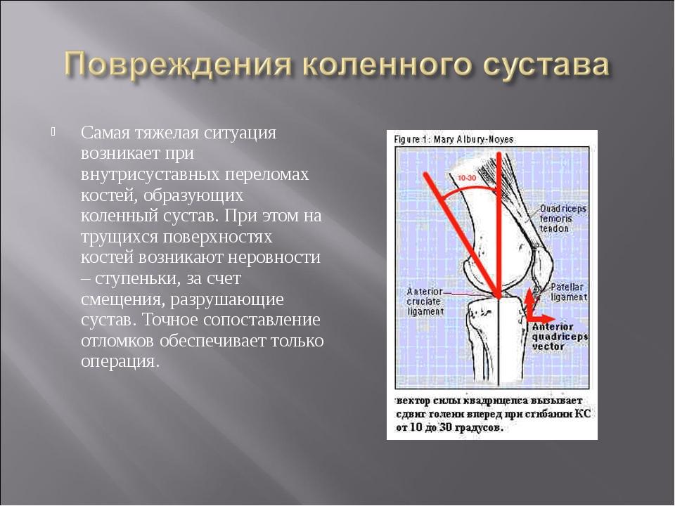 Самая тяжелая ситуация возникает при внутрисуставных переломах костей, образу...
