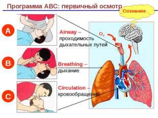 Сознание Программа АВС: первичный осмотр Airway – проходимость дыхательных пу