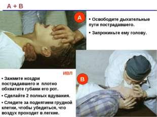 А + В ИВЛ • Зажмите ноздри пострадавшего и плотно обхватите губами его рот. •