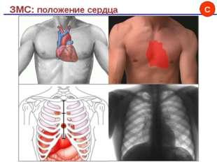 ЗМС: положение сердца