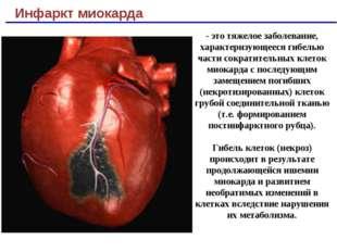 Инфаркт миокарда - это тяжелое заболевание, характеризующееся гибелью части с