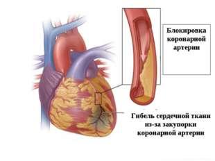 Блокировка коронарной артерии Гибель сердечной ткани из-за закупорки коронарн