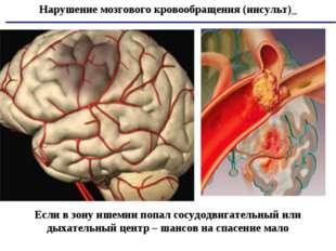 Нарушение мозгового кровообращения (инсульт)_ Если в зону ишемии попал сосудо