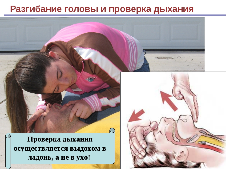 Разгибание головы и проверка дыхания Проверка дыхания осуществляется выдохом...
