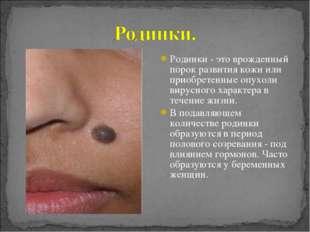 Родинки - это врожденный порок развития кожи или приобретенные опухоли вирусн