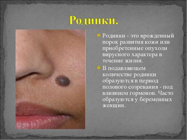 Родинки - это врожденный порок развития кожи или приобретенные опухоли вирусн...