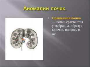 Сращенная почка — почки срастаются у эмбриона, образуя крючок, подкову и др.