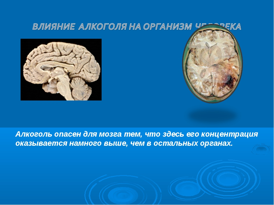 Алкоголь опасен для мозга тем, что здесь его концентрация оказывается намного...
