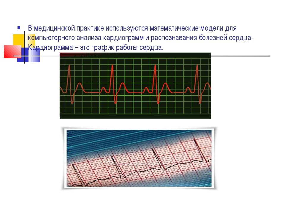 В медицинской практике используются математические модели для компьютерного а...