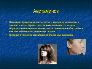 Авитаминоз Основные признаки его недостатка – апатия, сухость кожи и ломкость