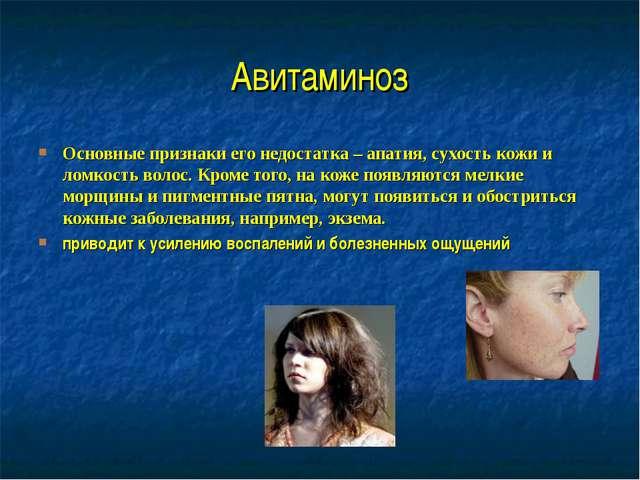 Авитаминоз Основные признаки его недостатка – апатия, сухость кожи и ломкость...