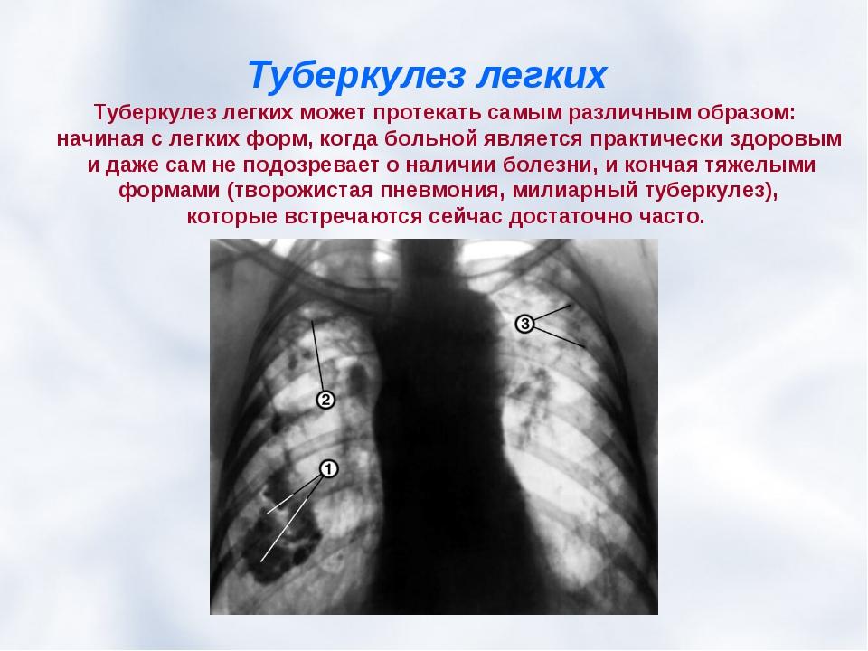 Как долго лечат туберкулез на начальной стадии