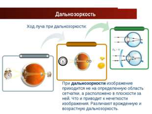 www.themegallery.com Company Logo Ход луча при дальнозоркости: Дальнозоркость