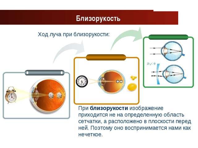 www.themegallery.com Company Logo Ход луча при близорукости: Близорукость При...