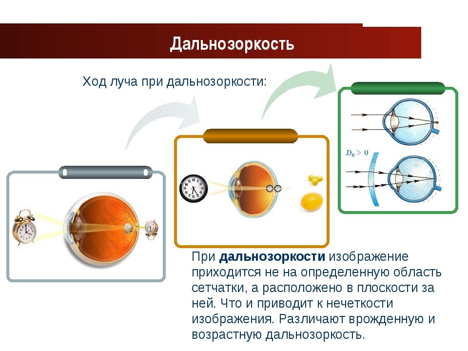 www.themegallery.com Company Logo Ход луча при дальнозоркости: Дальнозоркость...