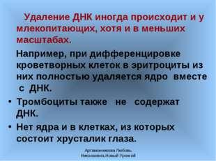 Артамонникова Любовь Николаевна,Новый Уренгой Удаление ДНК иногда происходит