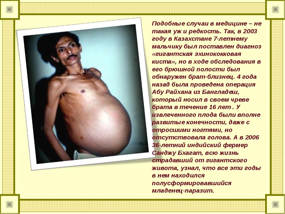 Подобные случаи в медицине – не такая уж и редкость. Так, в 2003 году в Казах...