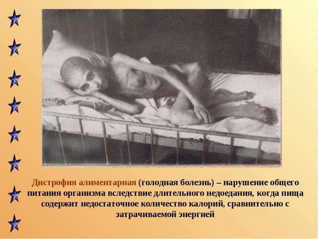 Дистрофия алиментарная (голодная болезнь) – нарушение общего питания организм...