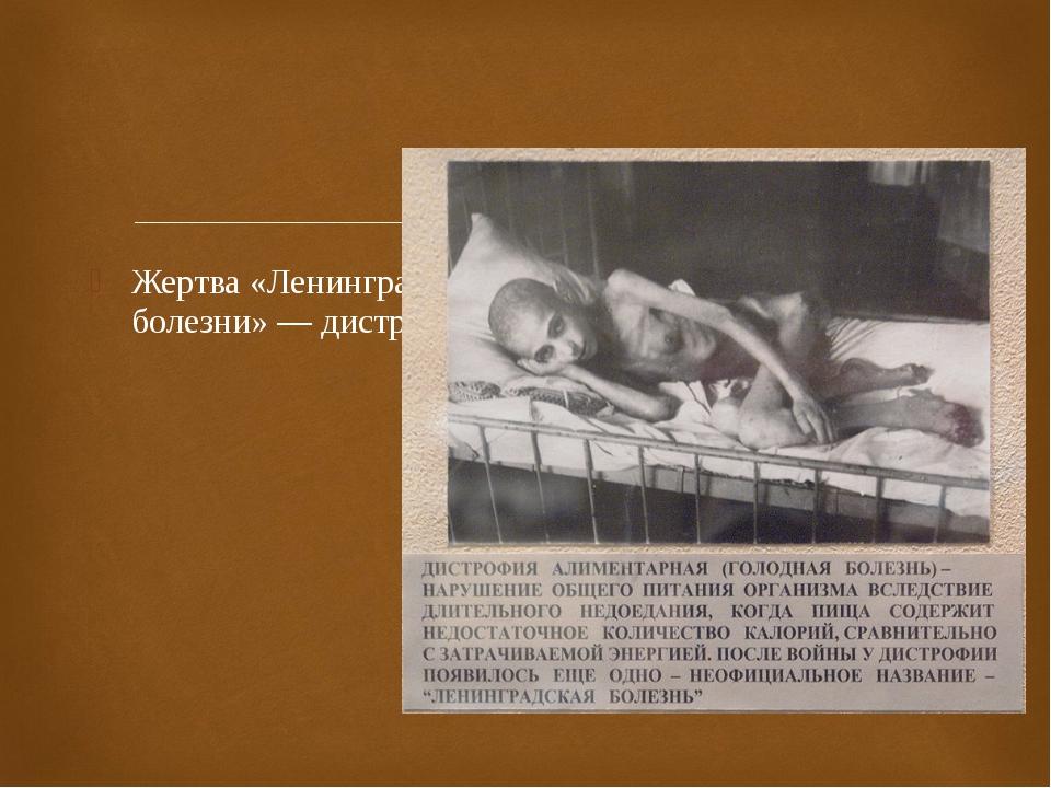 Жертва «Ленинградской болезни» — дистрофии