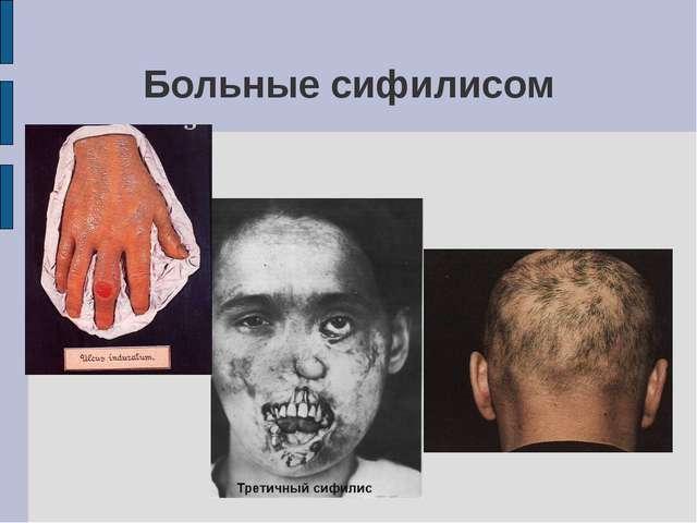 Больные сифилисом