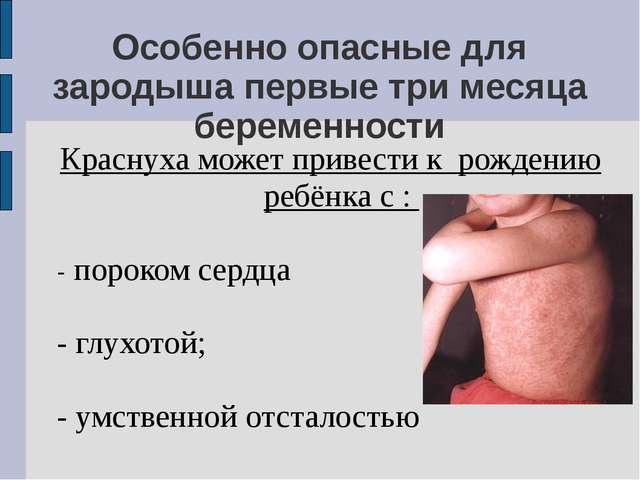 Особенно опасные для зародыша первые три месяца беременности Краснуха может п...
