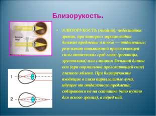 Близорукость. БЛИЗОРУКОСТЬ (миопия), недостаток зрения, при котором хорошо ви