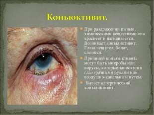 При раздражении пылью, химическими веществами она краснеет и нагнаивается. Во
