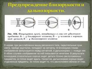 В норме, при расслаблении мышц ресничного тела, параллельные лучи света, прой