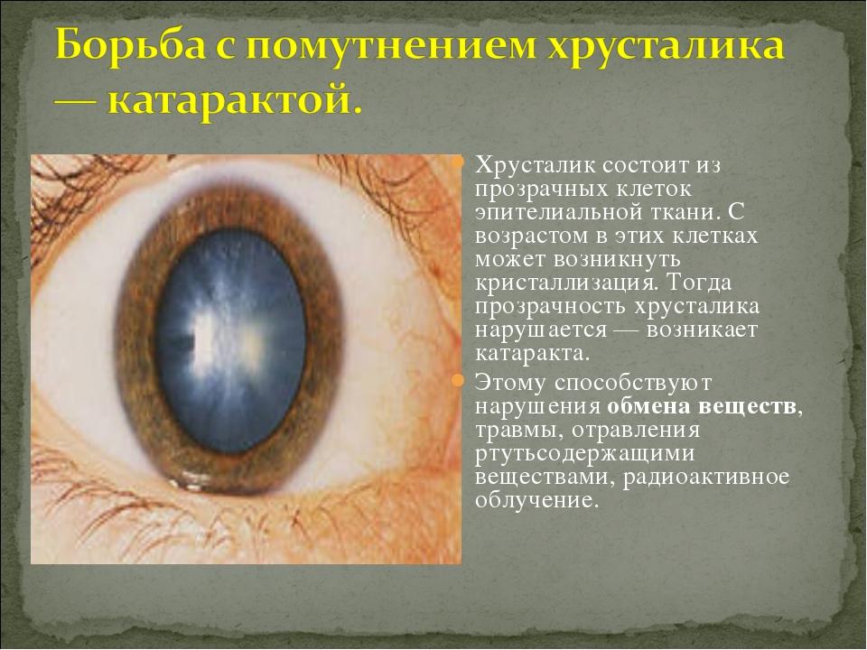 Хрусталик состоит из прозрачных клеток эпителиальной ткани. С возрастом в эти...